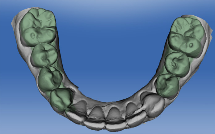 3D-Aufnahme der Folgesituation (6 Monate später). Optional kann der unveränderte Referenzbereich selektiert werden (gr