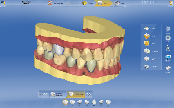 CEREC / inLab