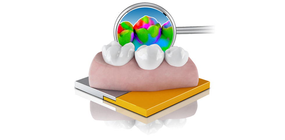 Dental – OraCheck